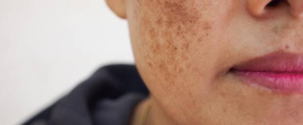 Frau mit pigmentierter Haut im Gesicht
