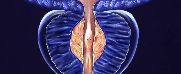 3D Darstellung einer vergrößerten Prostata