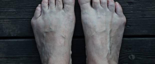 Füße mit Schneiderballen