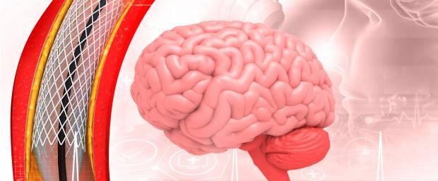Stent neben Gehirnabbildung
