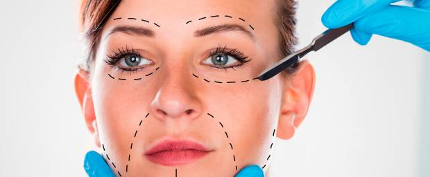 Unteres Facelifting (Face Lift)