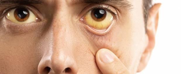 Mann mit Gelbsucht und gelben Augen