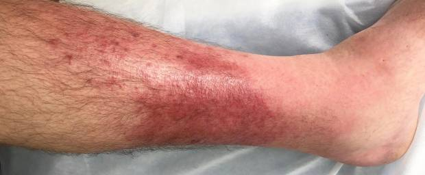 wie sieht thrombose am bein aus