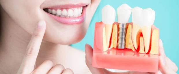 Frau mit Zahnmodell für Zahnimplantation in der Hand