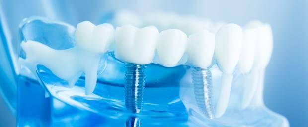 Zahnimplantate für Prothese