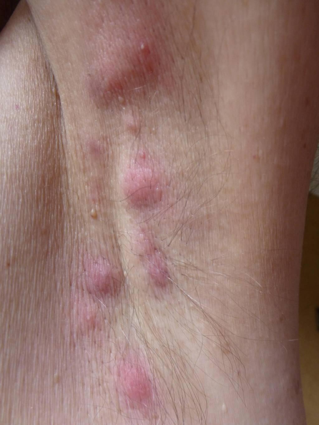 Inversa intim akne «L'acné qui