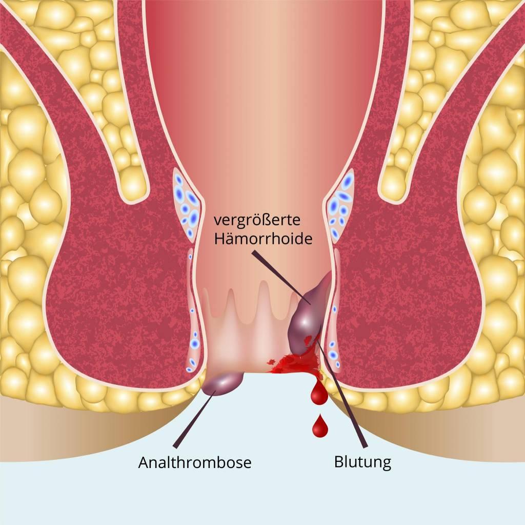 Anal thrombose How Long