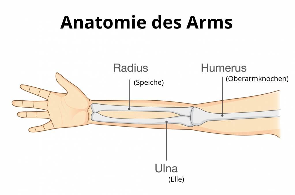 Oberarmbruch - Unterarmbruch - Armbruch - Gebrochener Arm