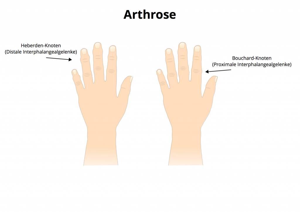Osteoarthritis des Knies gemeinsame Gelatine für die Gelenke-Kompresse SYNOVITIS des Kniegelenks
