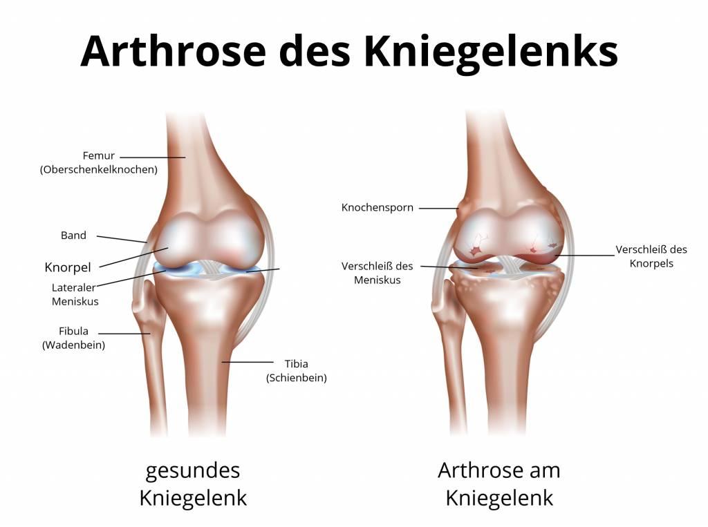 Arthrose | Gelenkverschleiß | Polyarthrose | Gonarthrose | Koxathrose