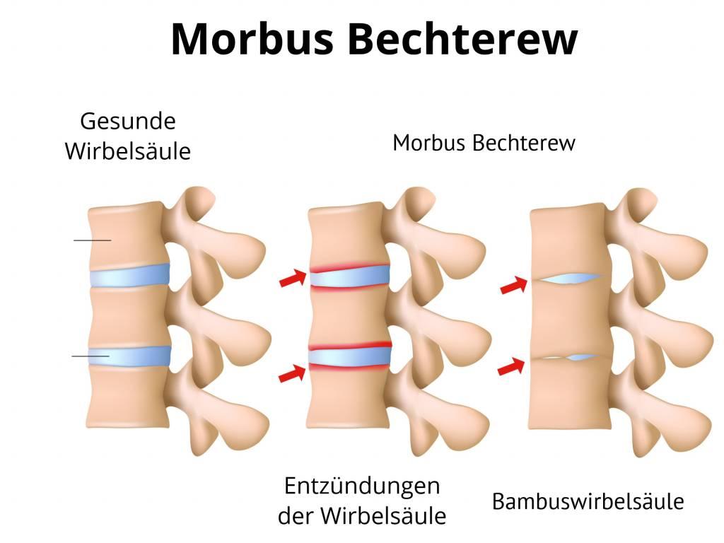 Morbus Bechterew | Spondylitis ankylosans | krumme Wirbelsäule