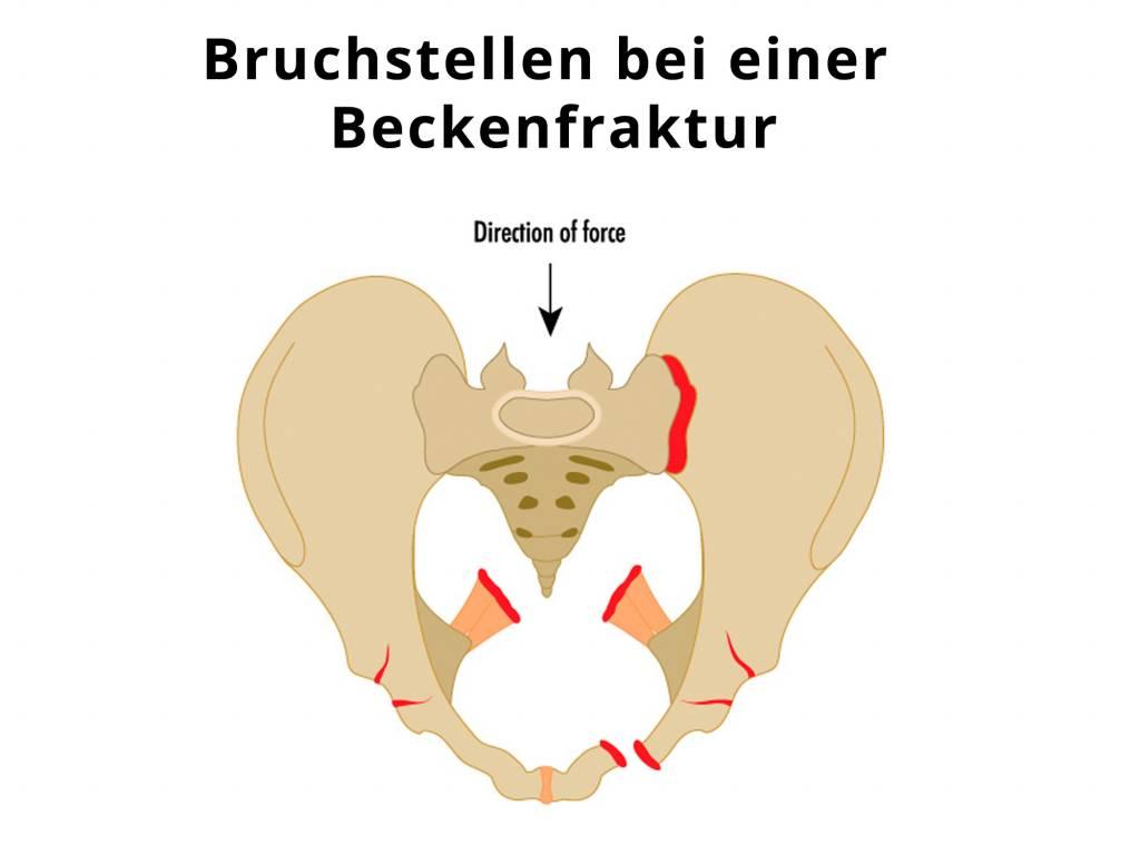 Beckenverletzung - Knochenbruch Becken - Knochenbruch Hüftgelenkspfanne