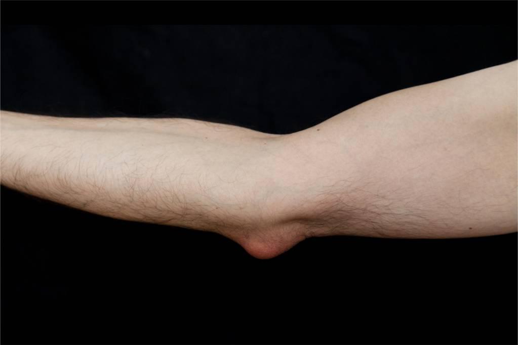 Wie lange schleimbeutelentzündung ellenbogen