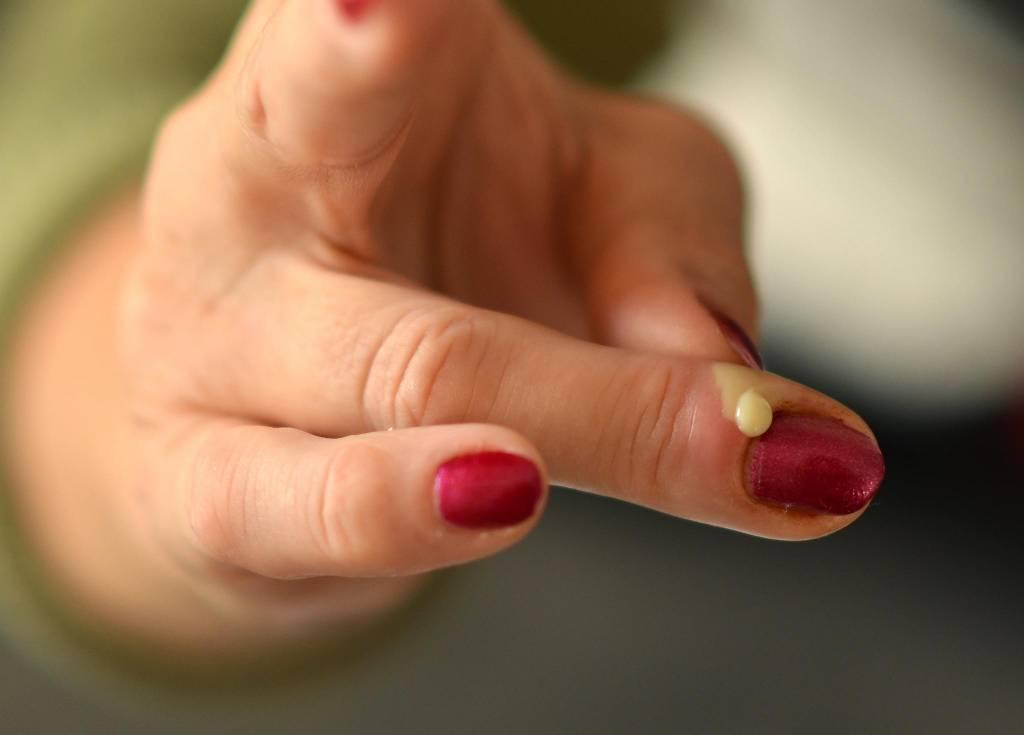 Eiter unterm fingernagel