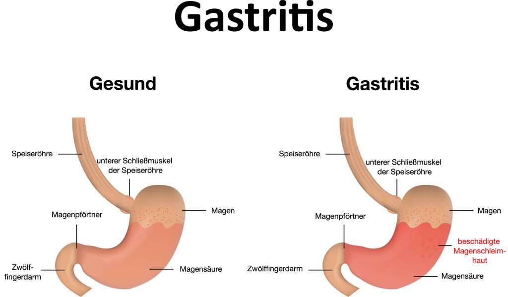 Gastritis (Magenschleimhautentzündung): Ursachen, Symptome, Behandlung