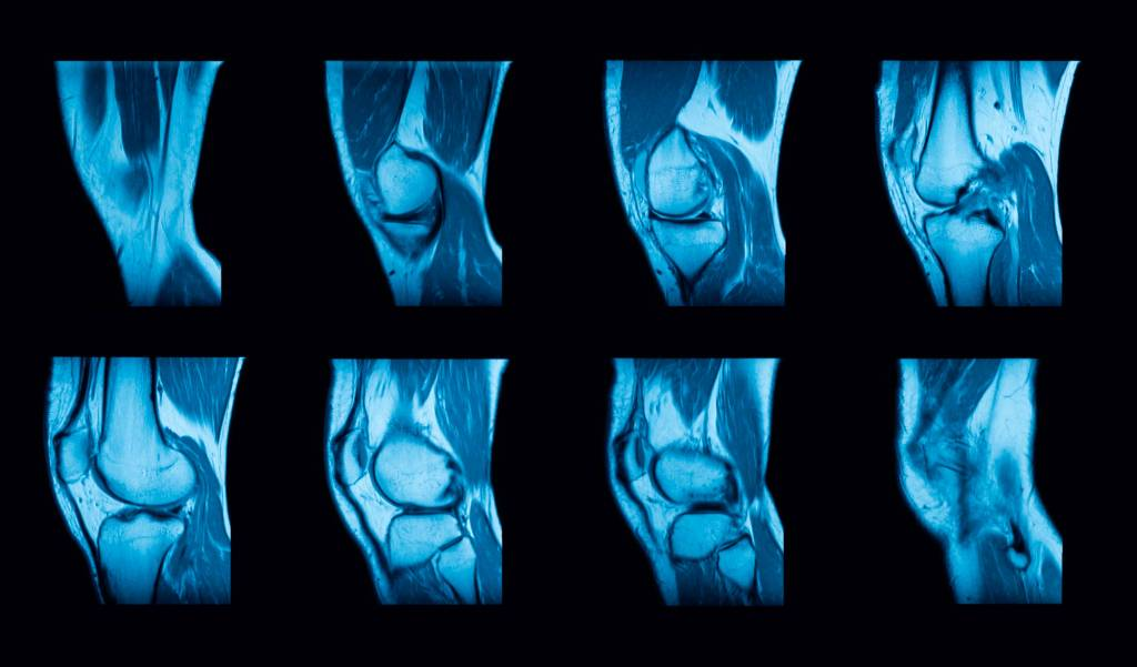 Bakterielle Arthritis
