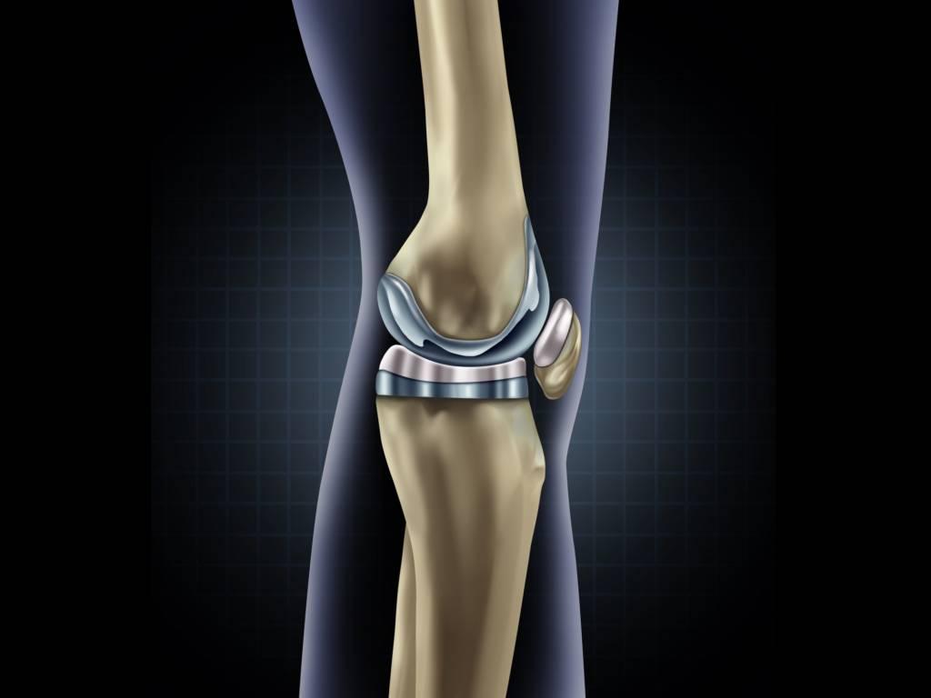 Kniegelenk Prothese - Kniegelenkersatz - künstliches Kniegelenk