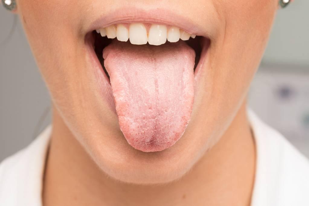 Rauchen aufgehort trockener mund