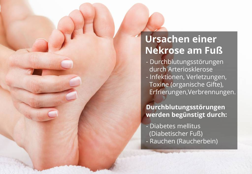 Haut löcher in fußsohle der Fußpilz