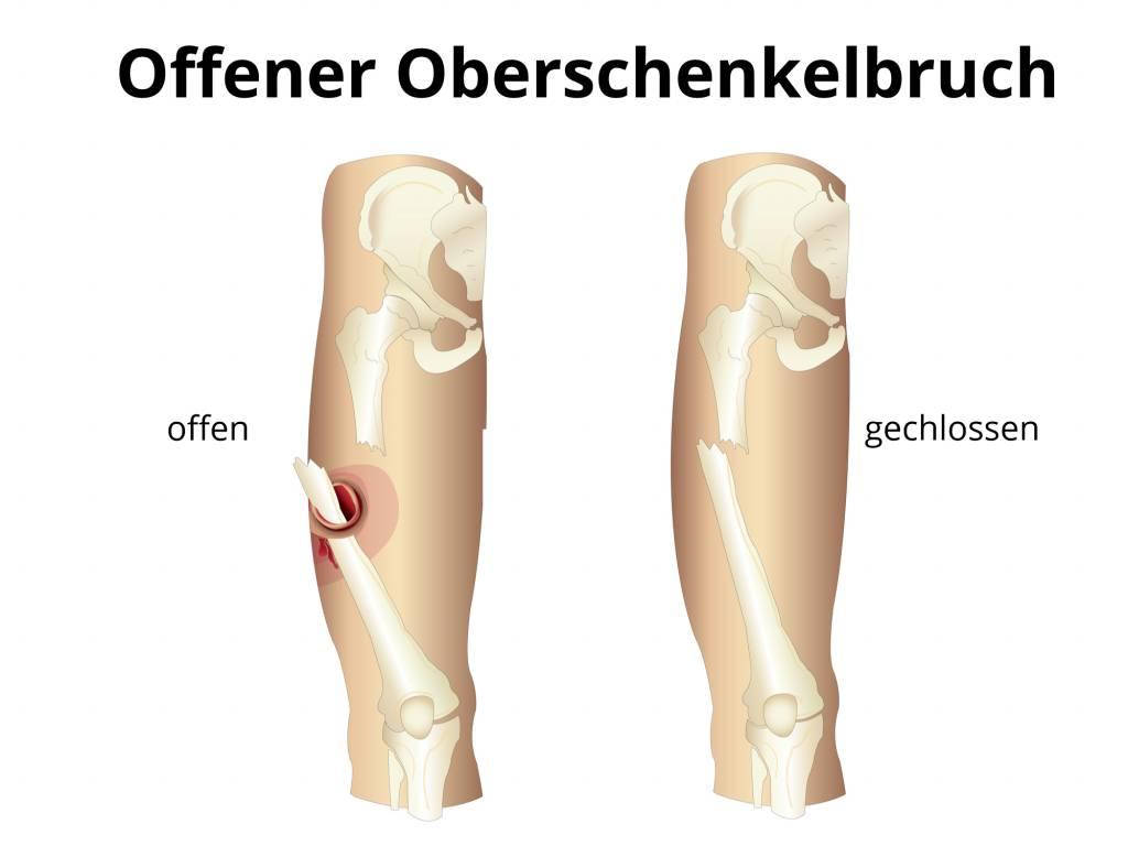 Oberschenkelbruch - Knochenbruch Oberschenkel