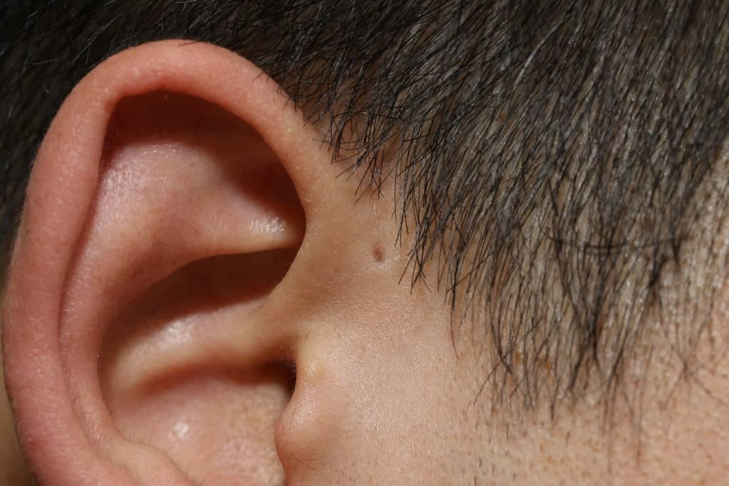 Hinterm ohr verhärtung Tinnitus: Ursachen,