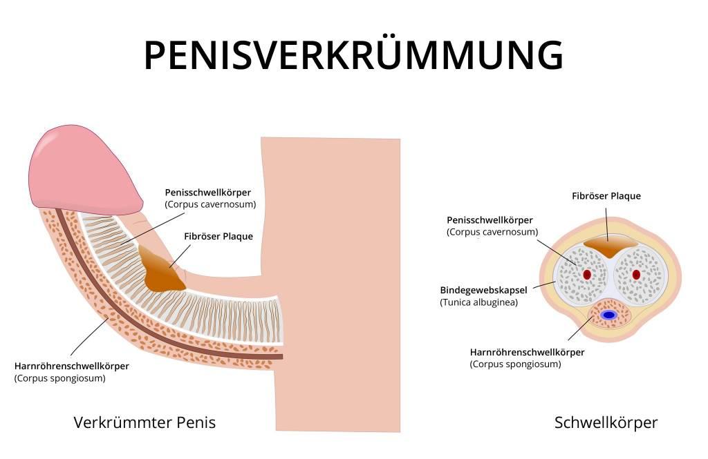 Penis schaft Penis head