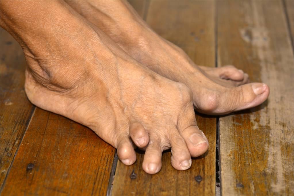 Meine Tipps für Rheuma-Füße