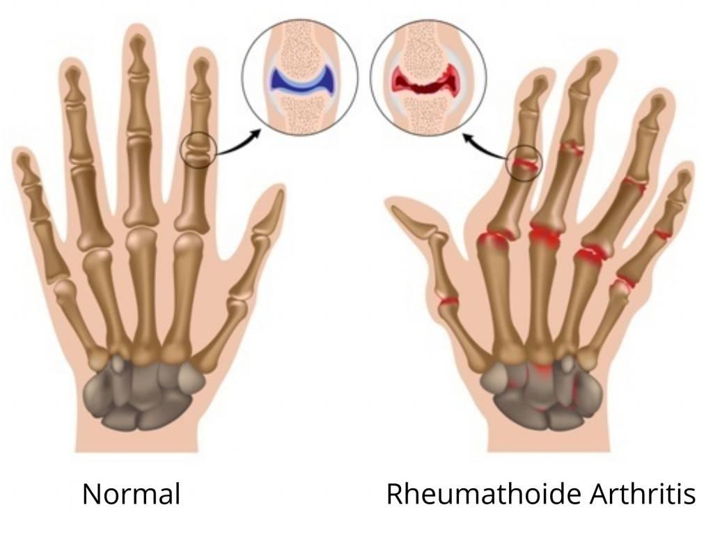 Fibromyalgie: Die Krankheit besser verstehen und die Symptome behandeln