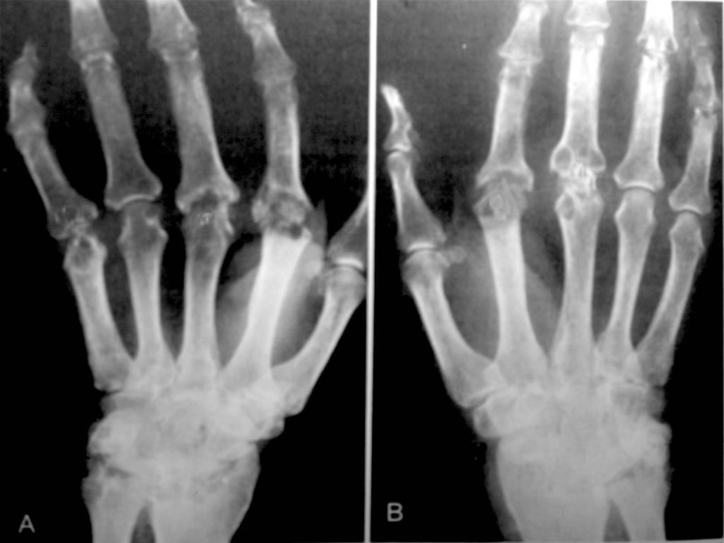 Schwellungen und Knoten an den Händen – Ursachen: Entzündliches Rheuma und andere Arthritisformen