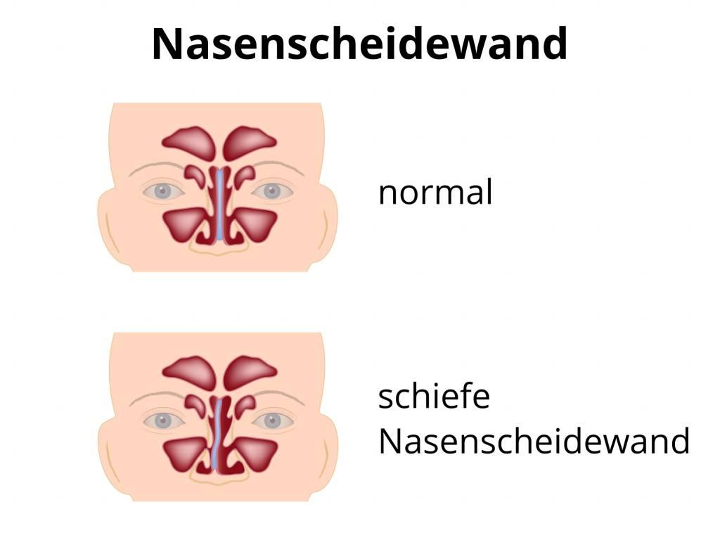 Begradigung Nasenscheidewand - Operation Nasenscheidewand ...