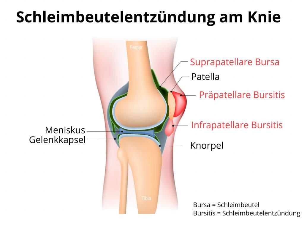 Schleimbeutelentzündung (Bursitis) im Bereich des Knies