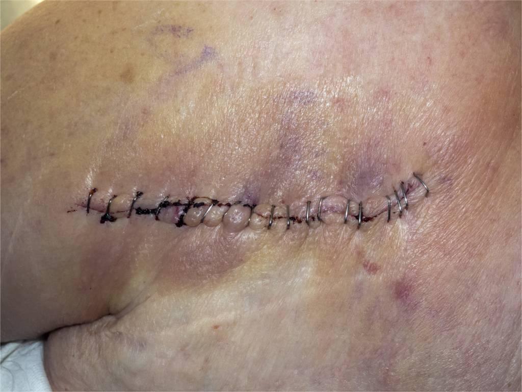 Schultergelenkersatz - Schultergelenkprothese - künstliches ...