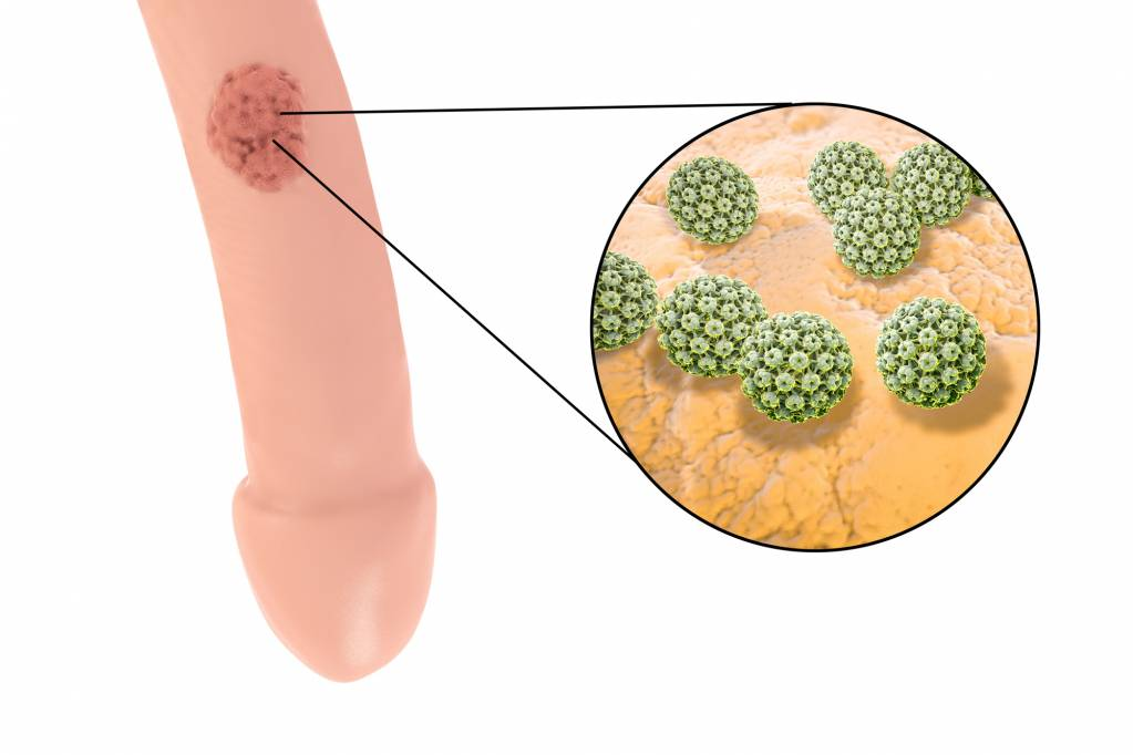 Mund feigwarzen HPV bedingte