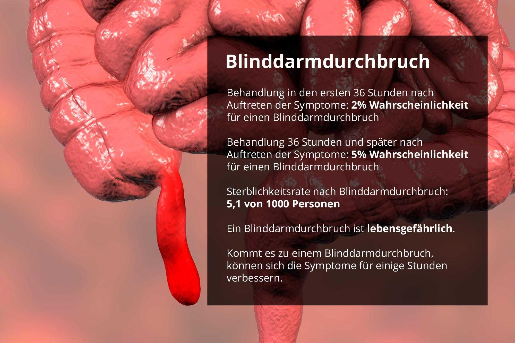 Geplatzt blinddarm merkt wie man Blinddarmoperation