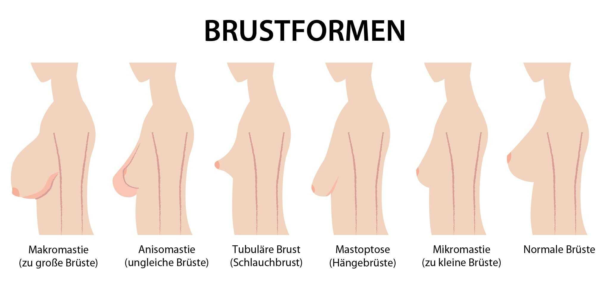 Asymmetrische brüste