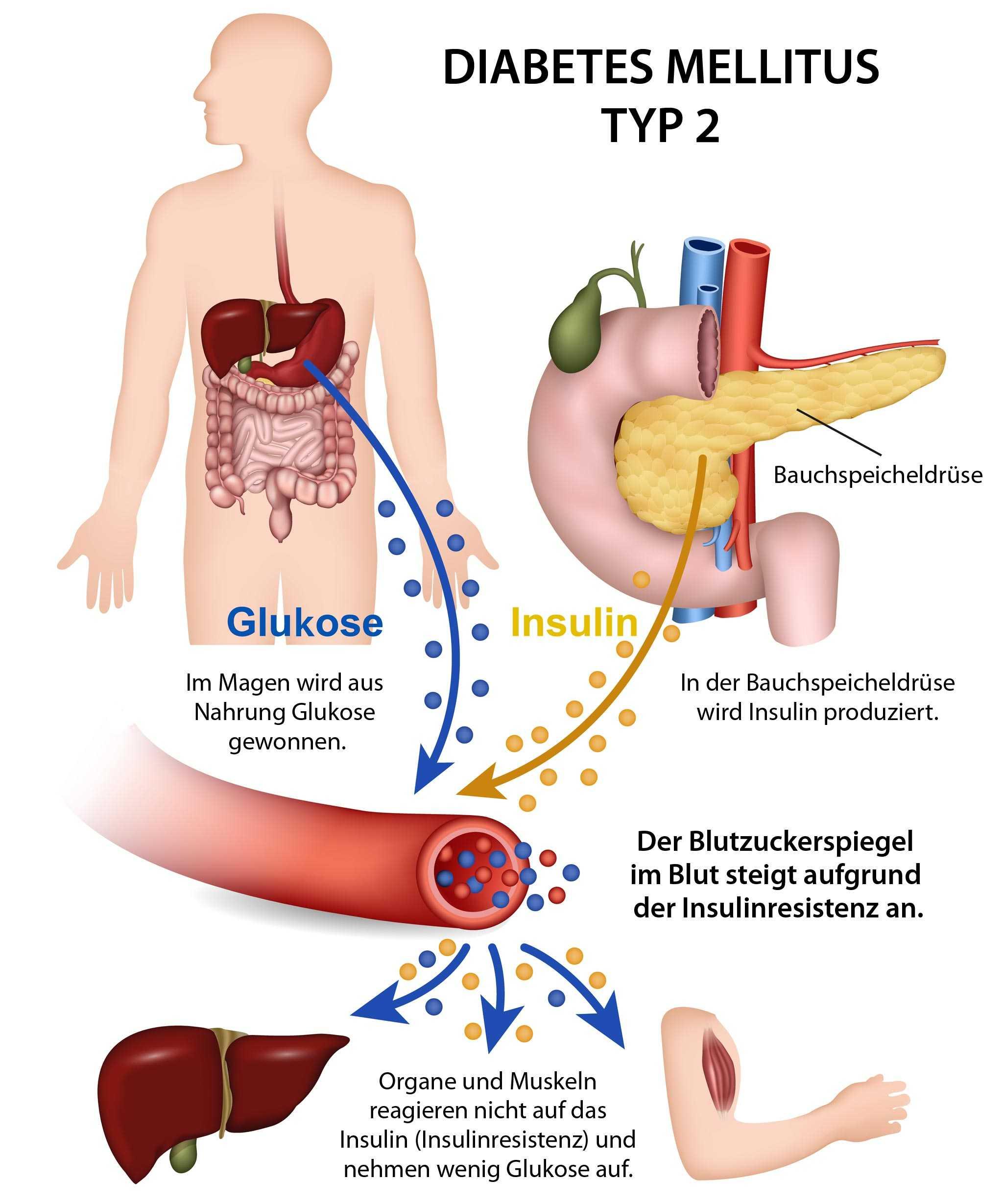 Ballaststoffe sind bei Diabetes unverzichtbar - Diabetes mellitus