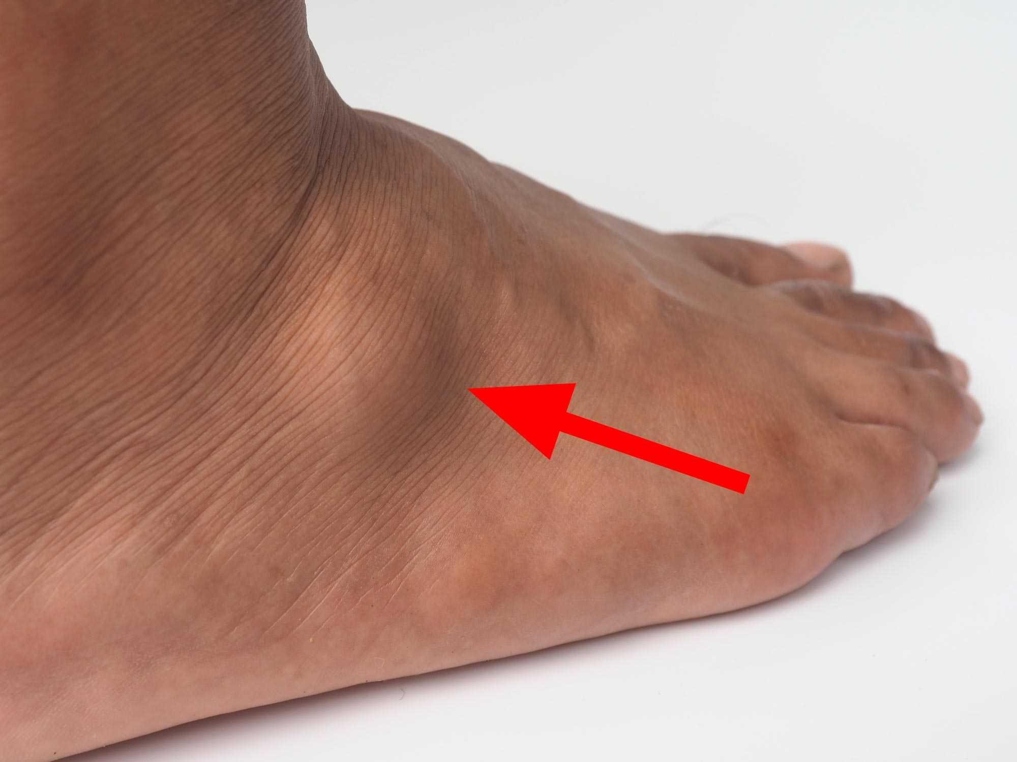 Wie wird ein Überbein am Fußrücken behandelt?