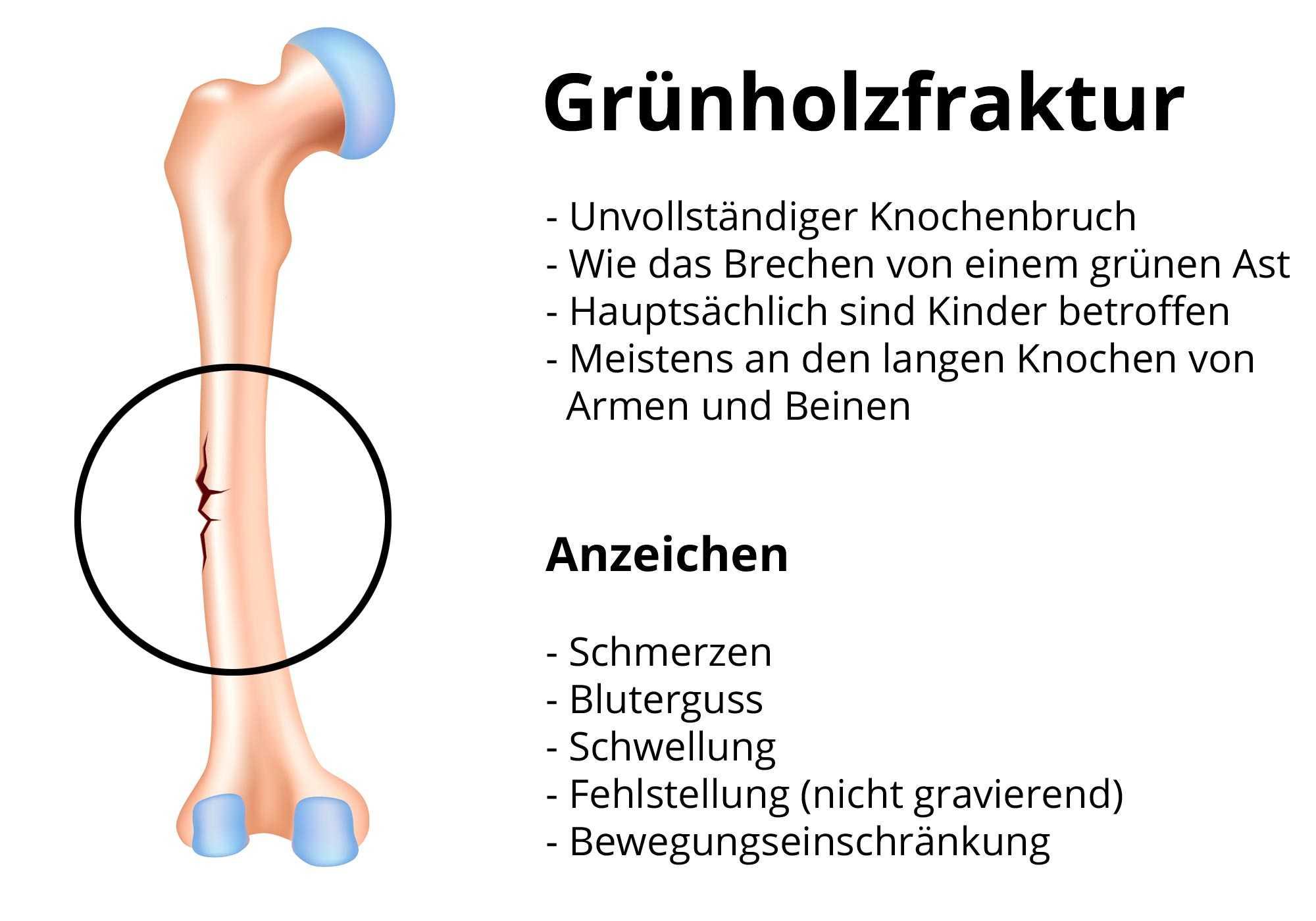 Brechen schmerzen handgelenk ohne Handgelenk verstaucht: