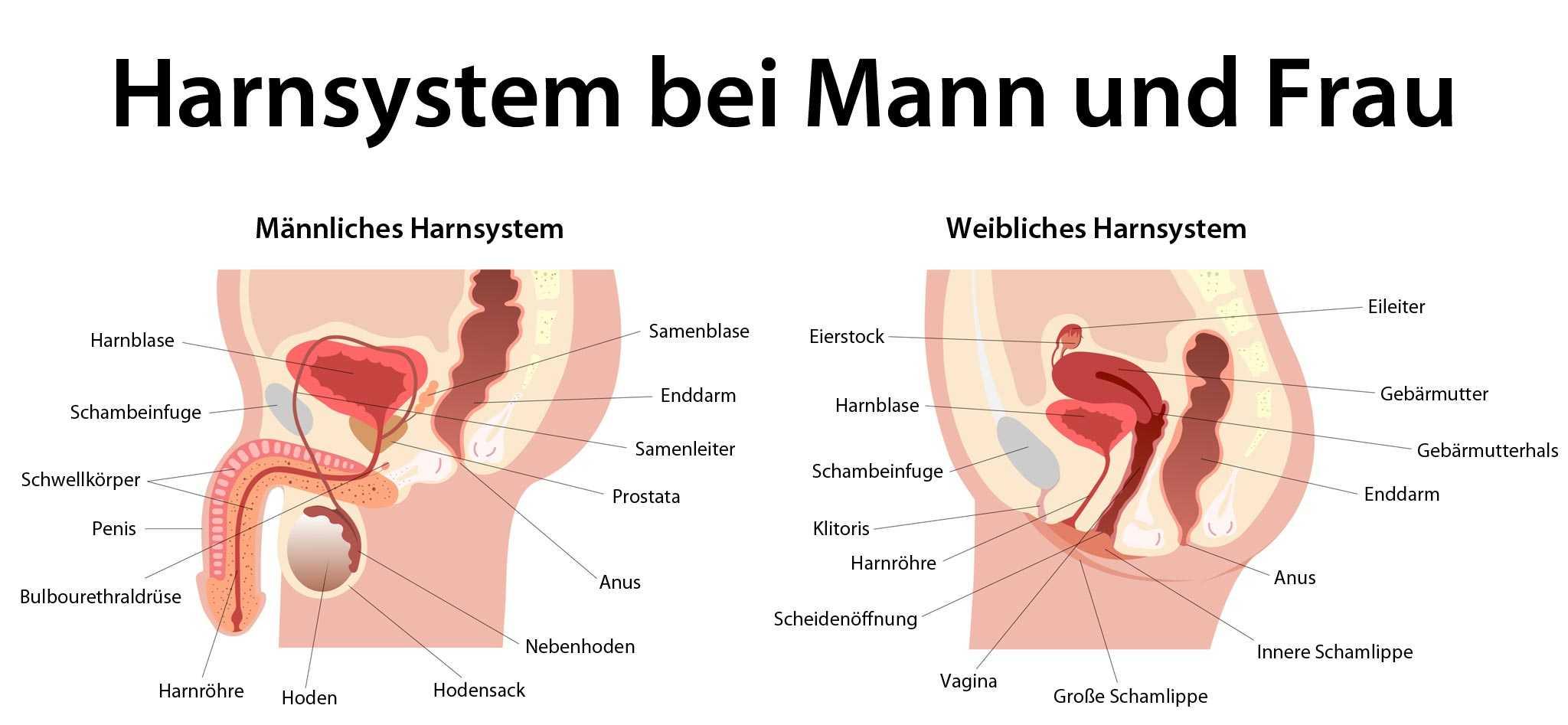 akute prostatitis amboss)