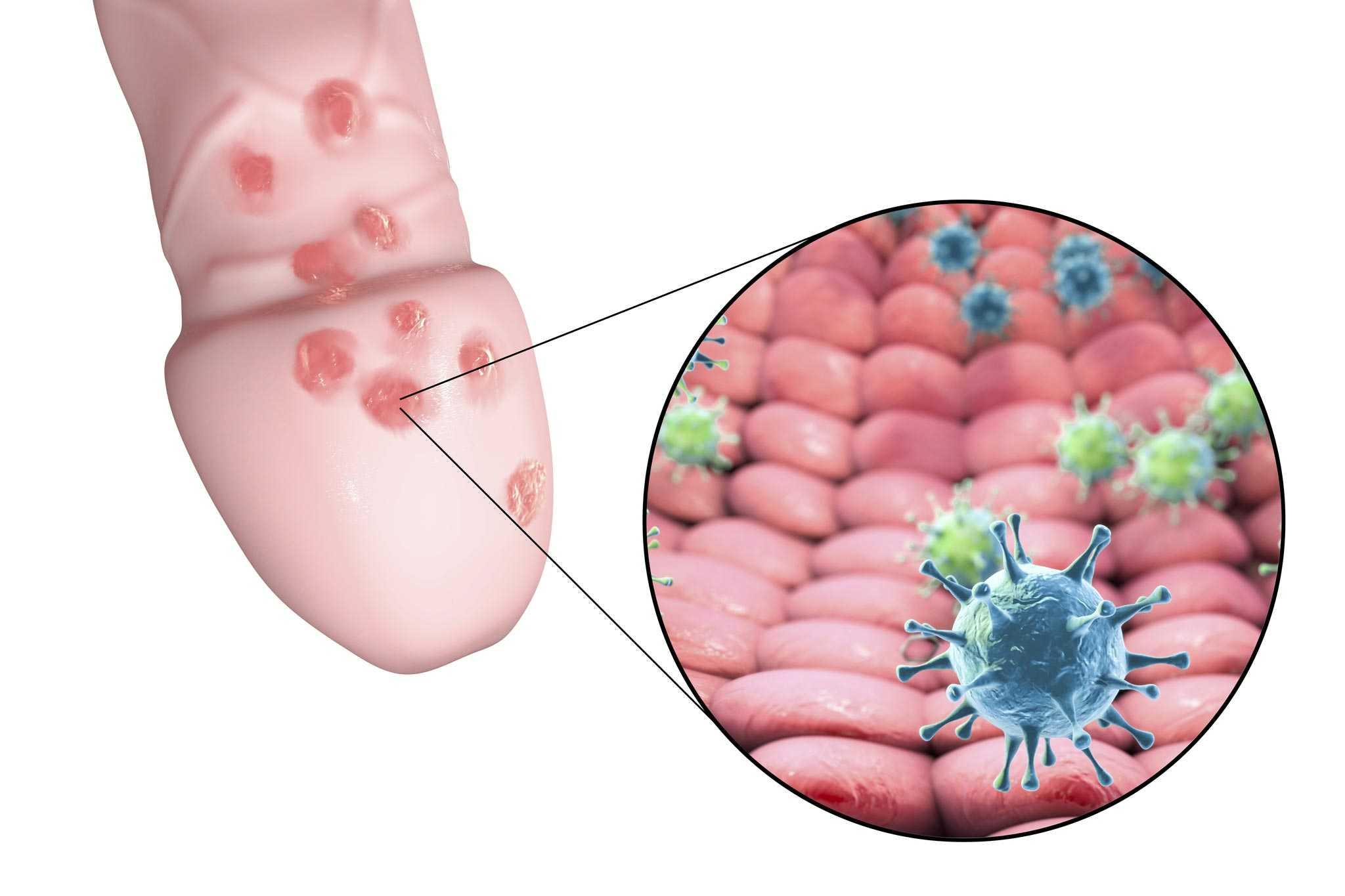 Genitalherpes » Ursachen, Beschwerden, Behandlung