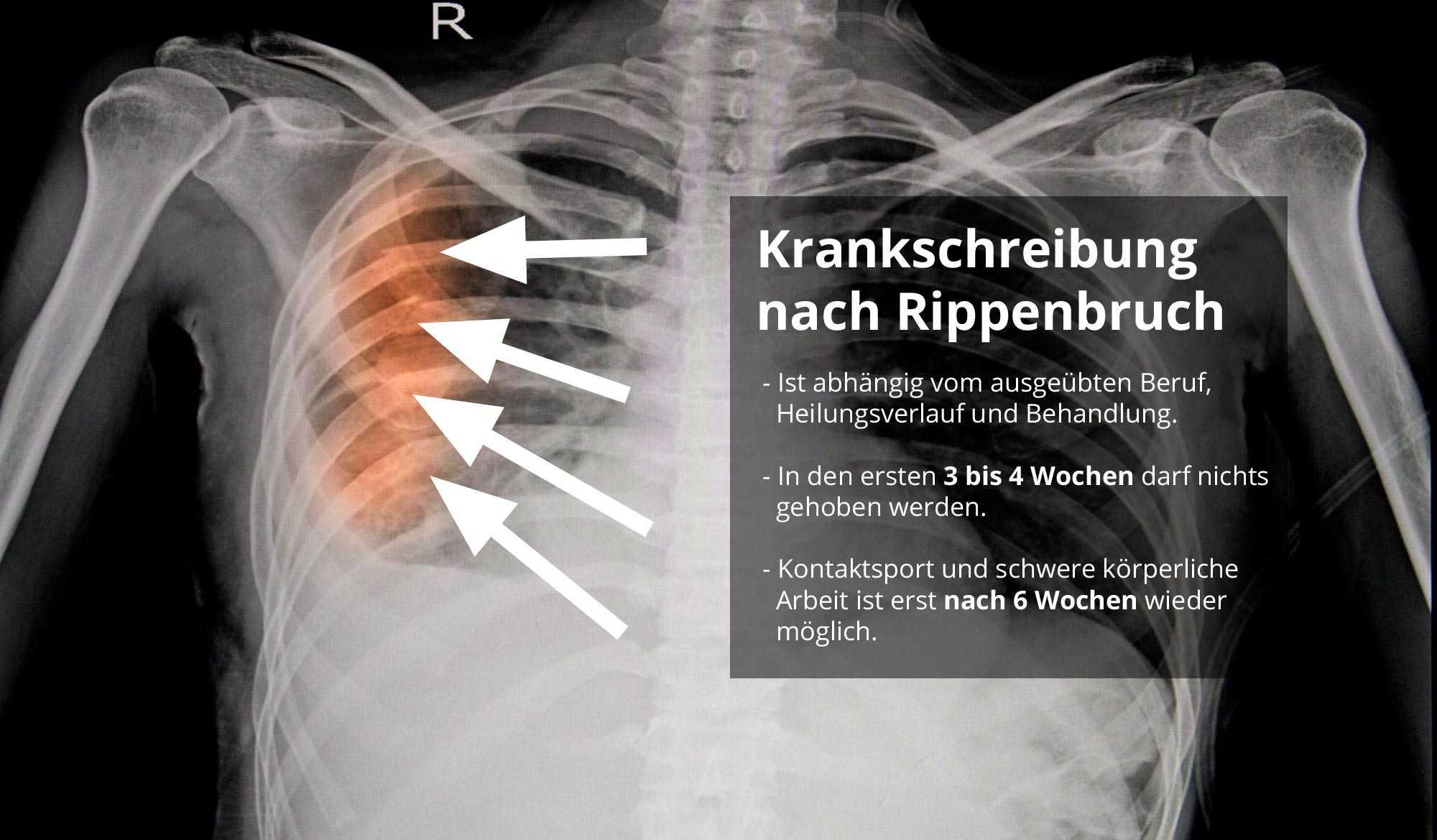 pneumothorax wie lange dauert die heilung