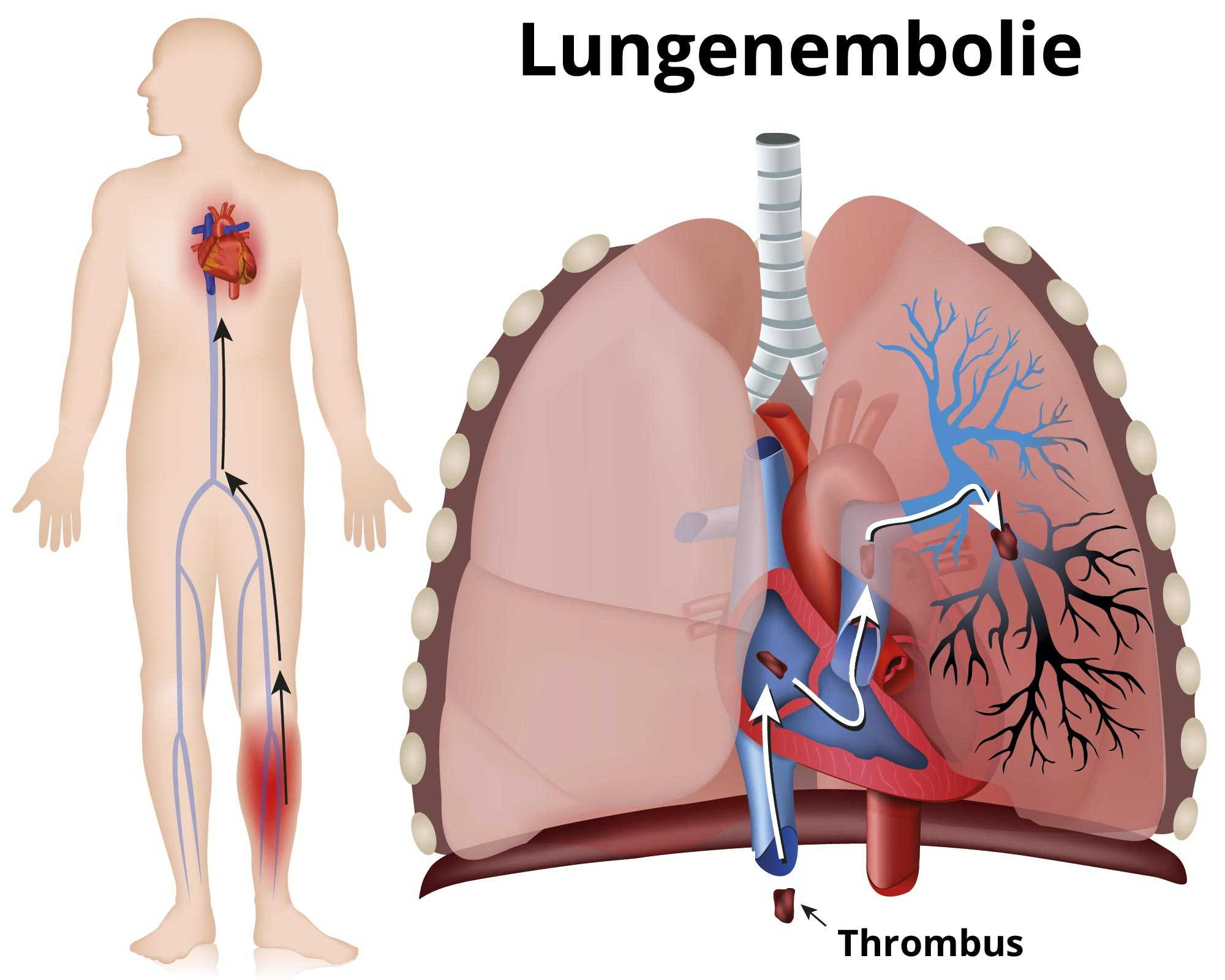 Thrombose angst vor erneuter Experten: Angst
