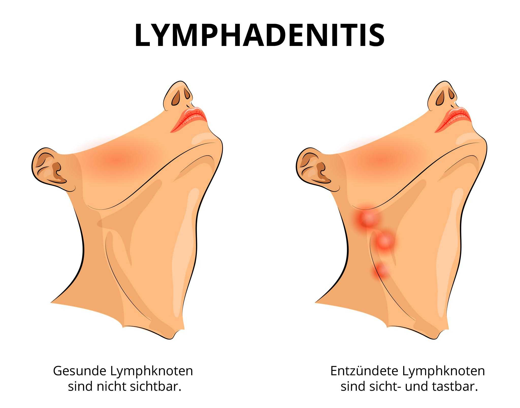 Verschiebbar lymphknoten Lymphknoten? (Gesundheit