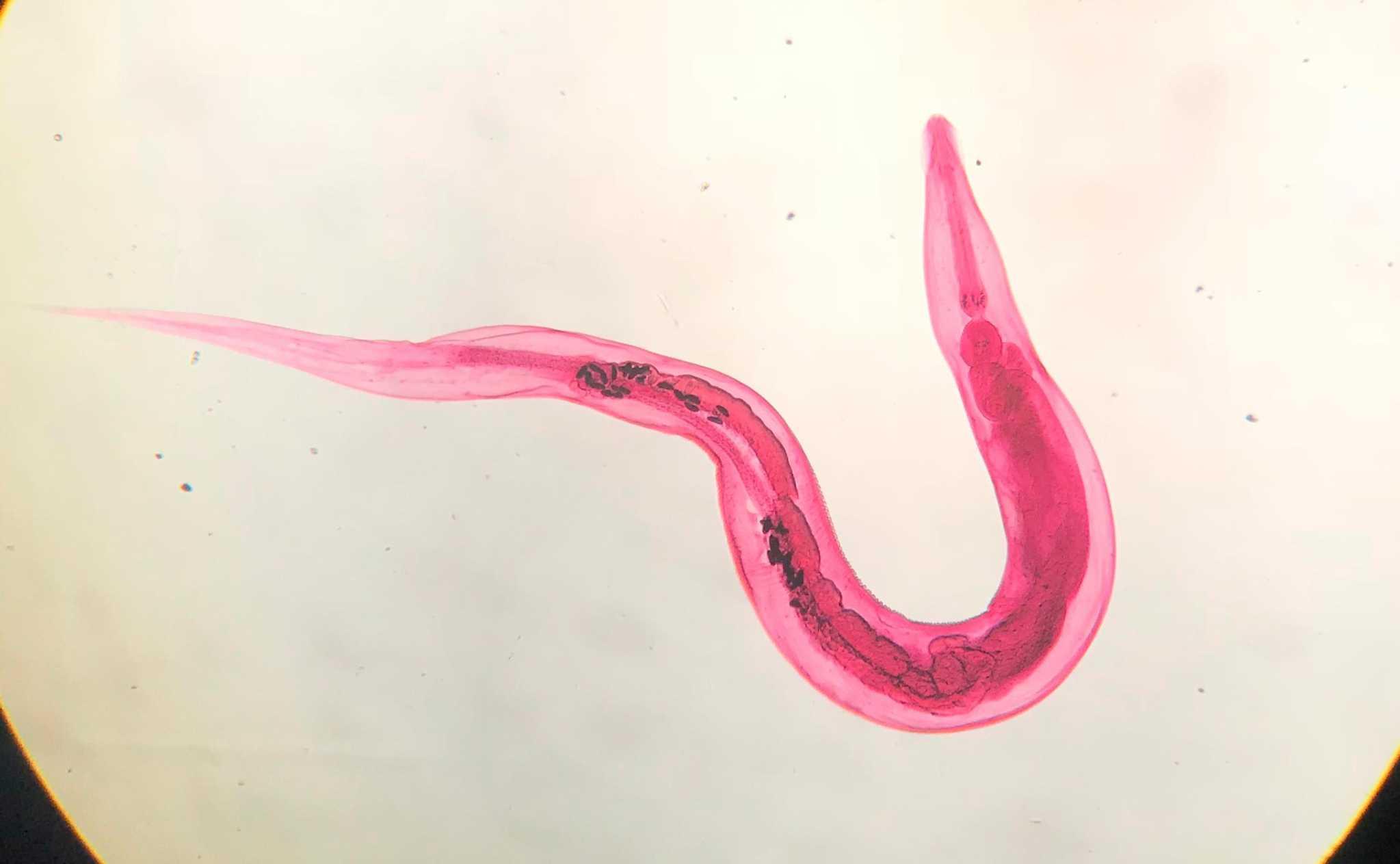 Madenwurmer Ursache Symptome Massnahmen