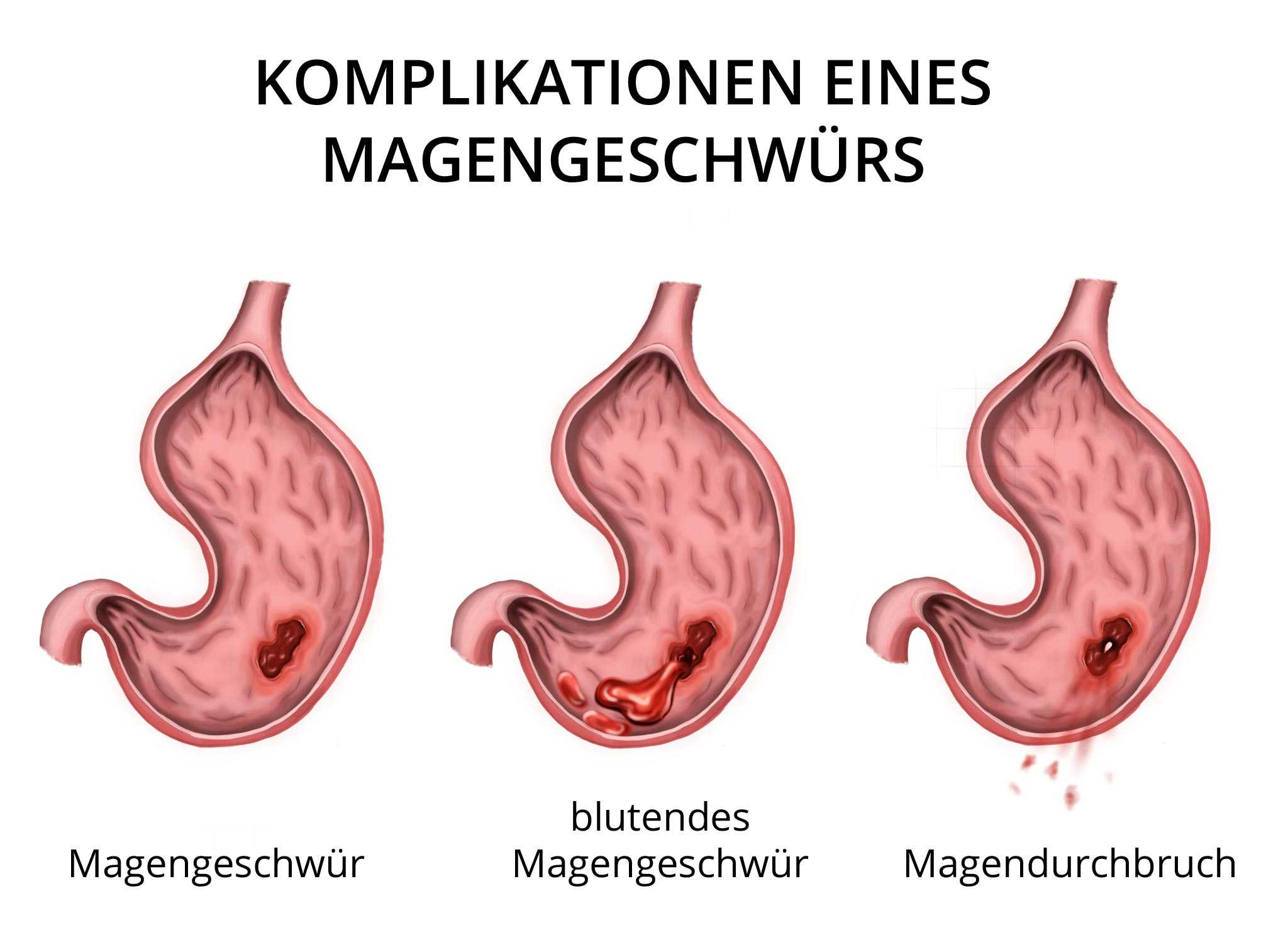 Diät Magengeschwüre