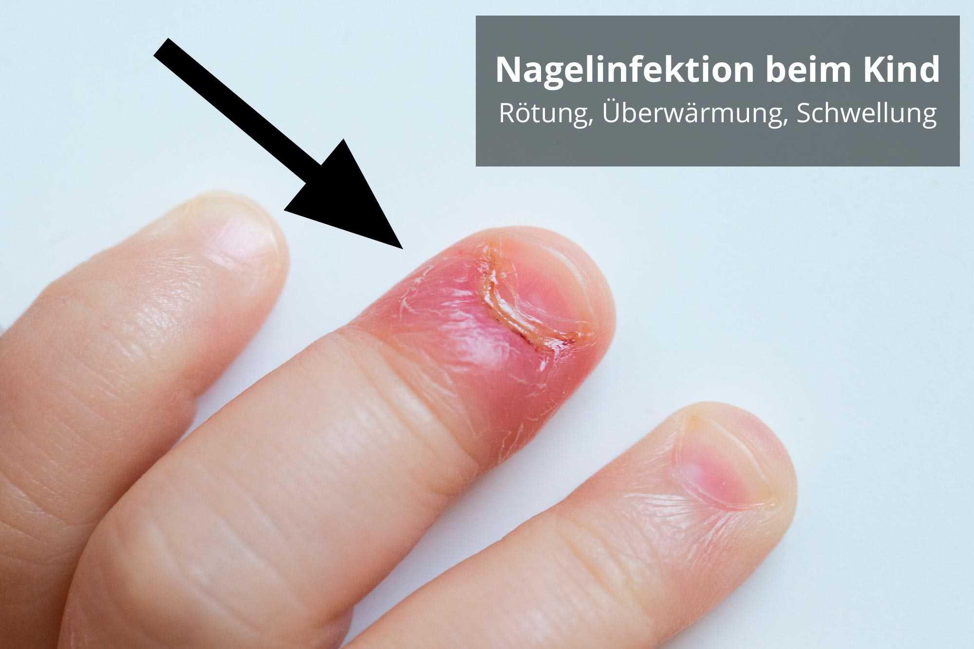 wildes fleisch nagel