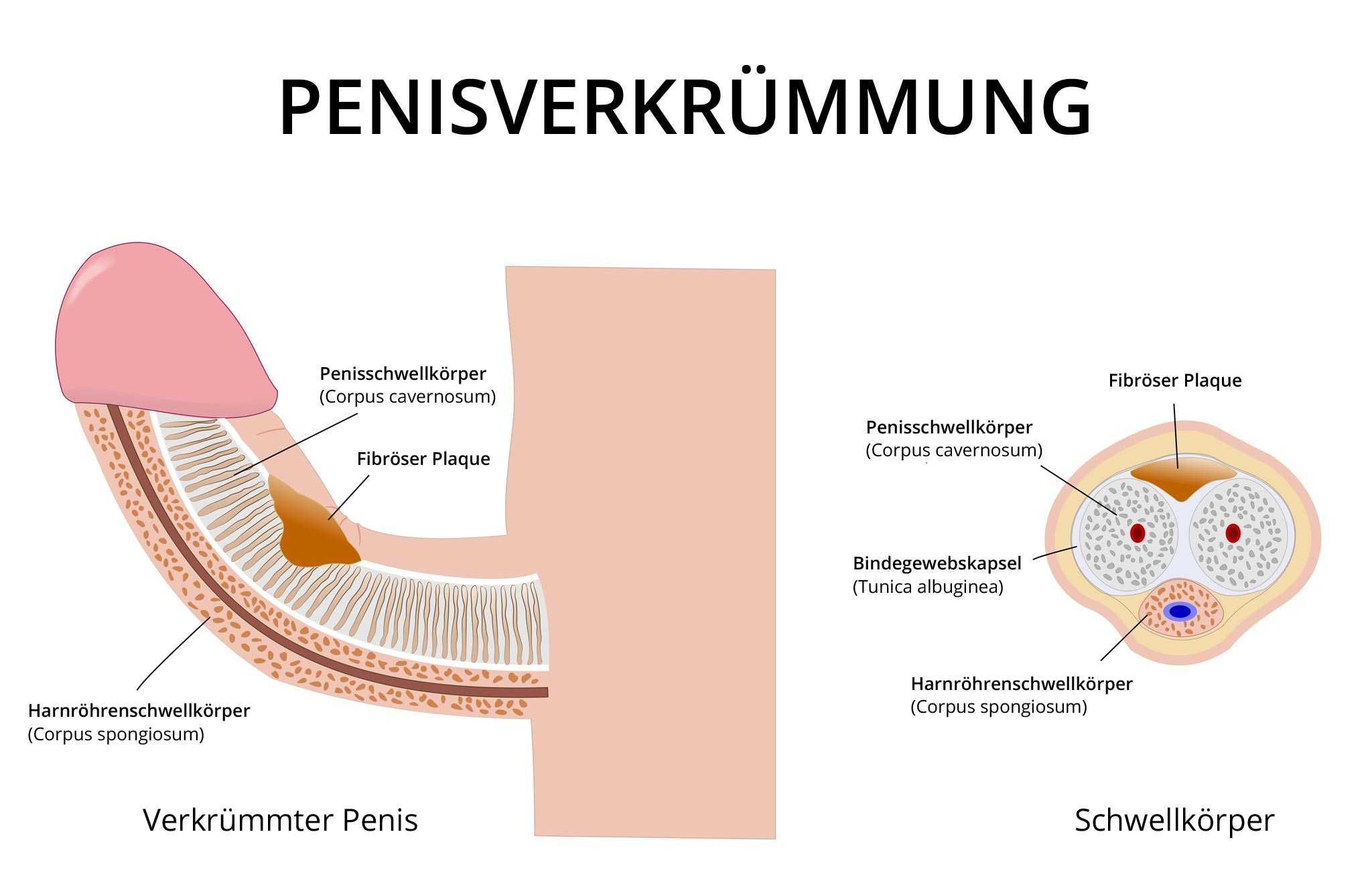 Penisverkrümmung » Ursachen, Formen, Behandlung