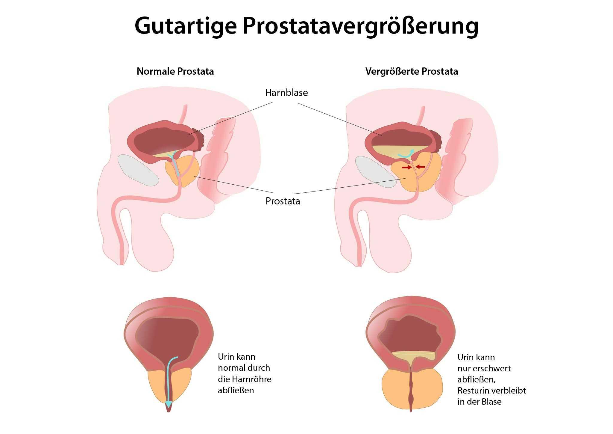 prostata vergrössert behandlung