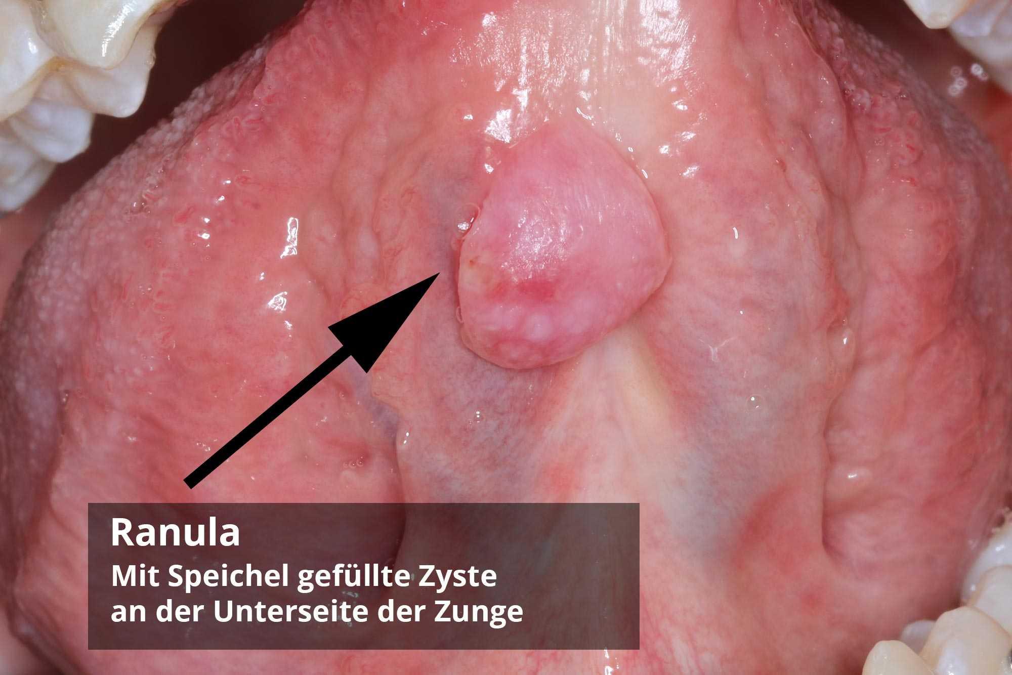 Drüse entzündung der bartholinischen Bartholinischer Abszess