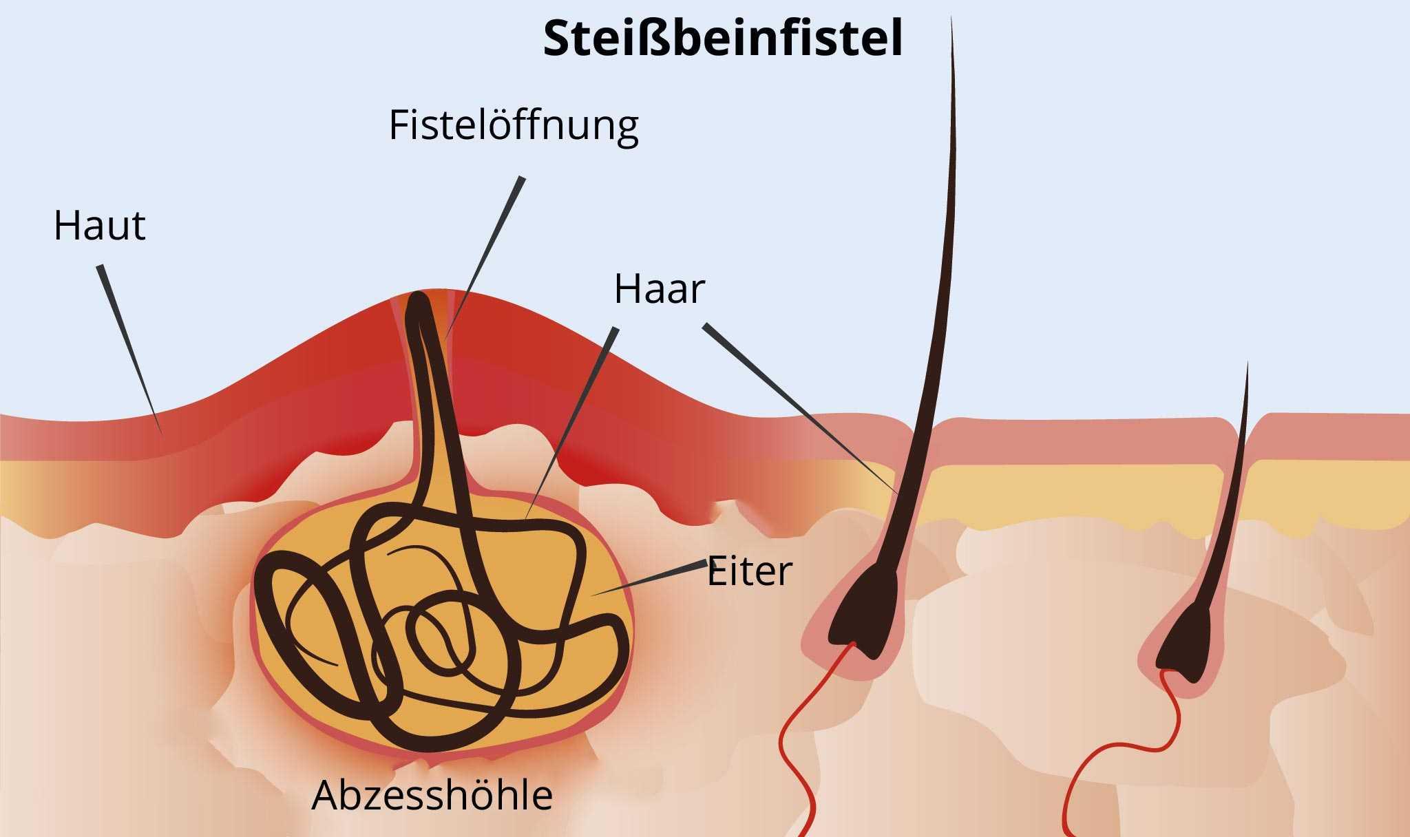 Steißbeinfistel » Ursachen, Behandlung, Operation
